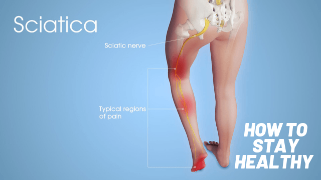 best sitting position for sciatica
